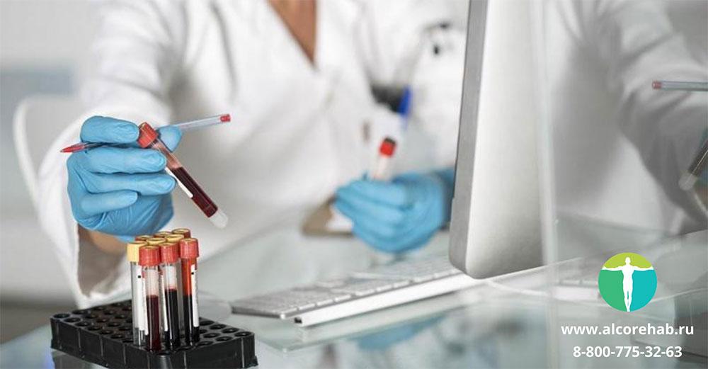 CDT. Анализ крови на определение алкоголя