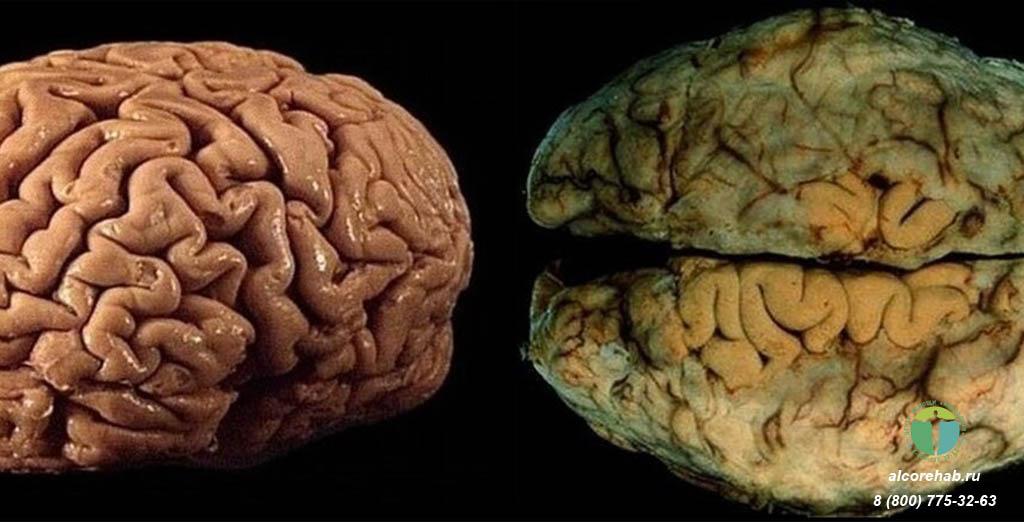 Как влияет алкоголь на мозг?